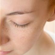 Jautrios odos procedūra