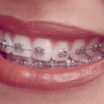RA Dental