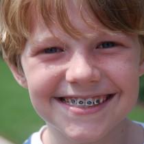 Denteina